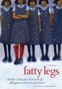 fatty legs 8585187